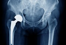 Low-risk Hip Replacement Patients Can Skip Standard Hip Precautions