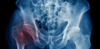 COPD Patients More Likely to Sustain Fracture