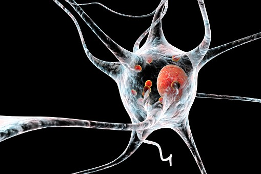 Motor Neuron: Algorithm Detects Medication Patterns in Patients with Parkinson's Disease