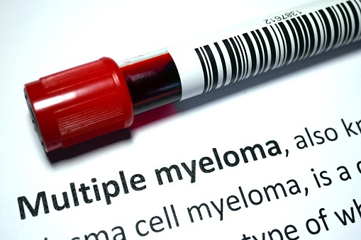 Multiple myeloma - blood disorder abstract.