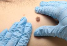 Structured Surveillance Program May Earlier Detection of Melanoma