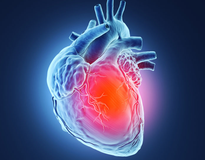 U.S. Patterns for Recurrent Coronary Heart Disease Examined